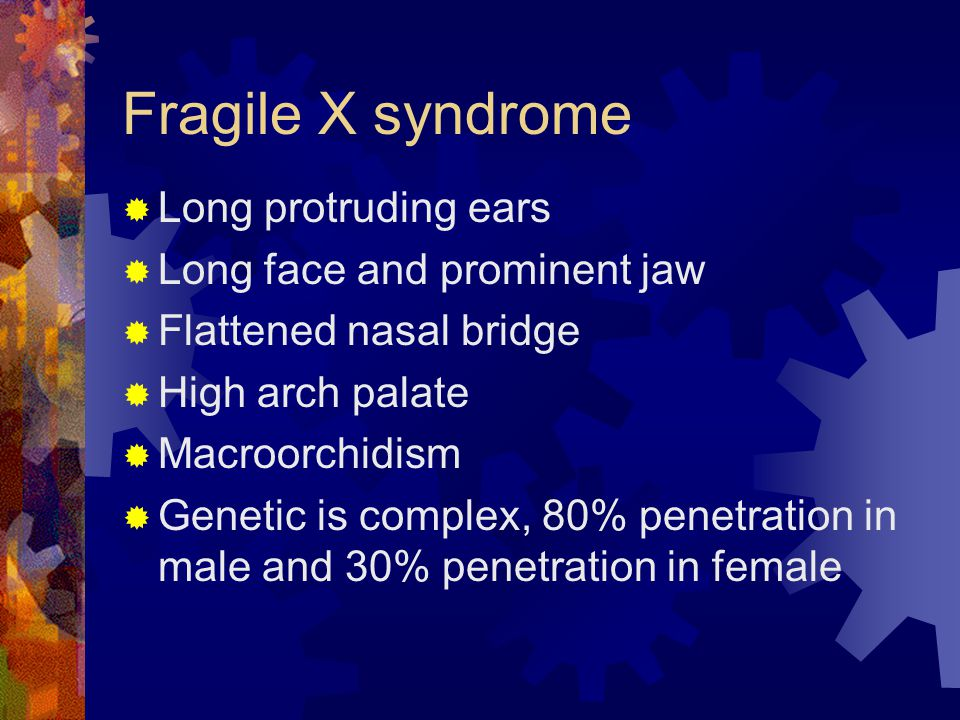 Fragile X syndrome Long protruding ears Long face and prominent jaw