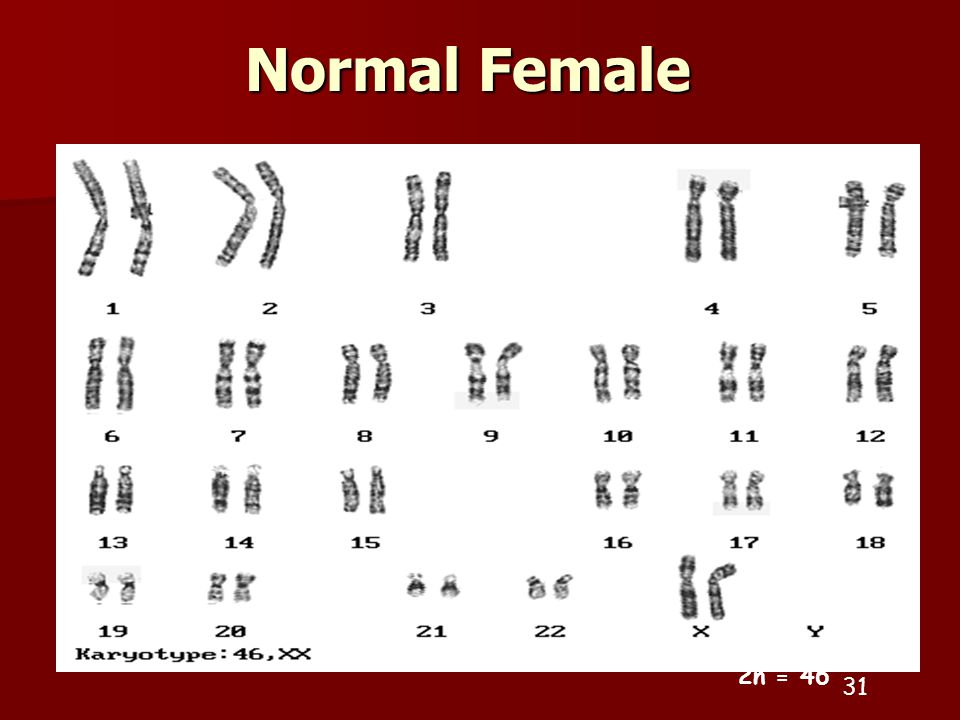Normal Female 2n =