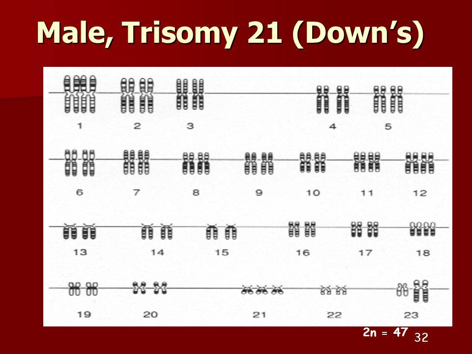 Male, Trisomy 21 (Down's) 2n =