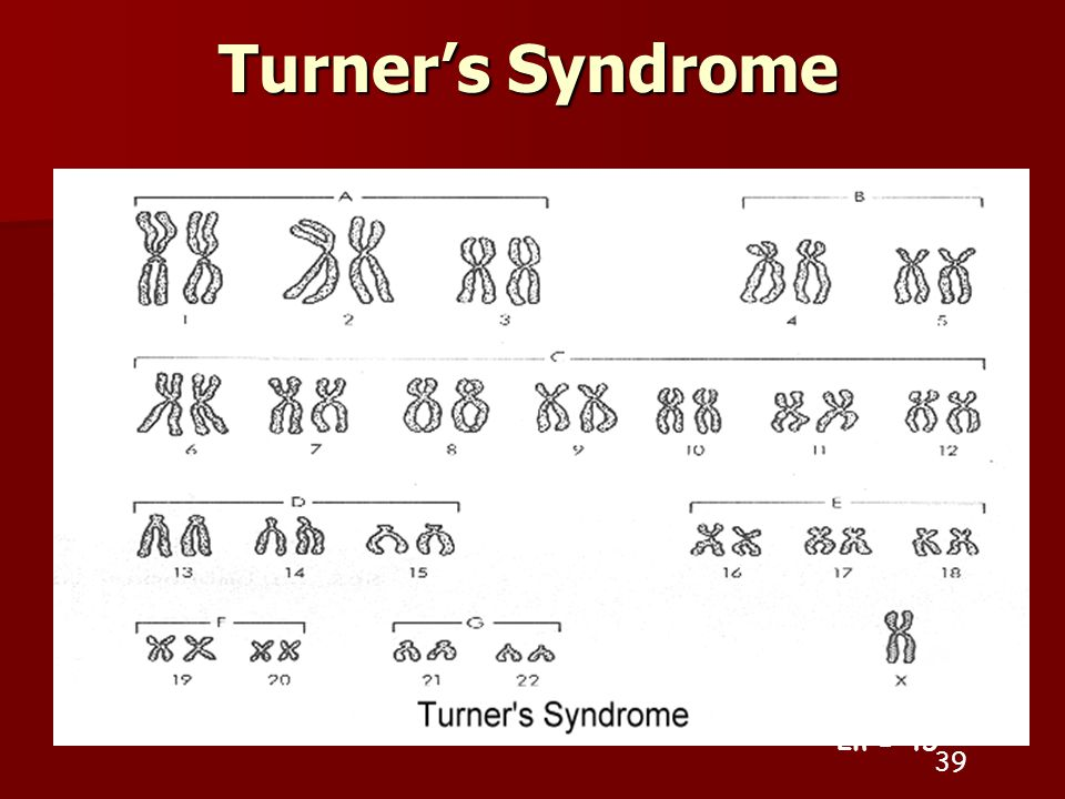 Turner's Syndrome 2n =
