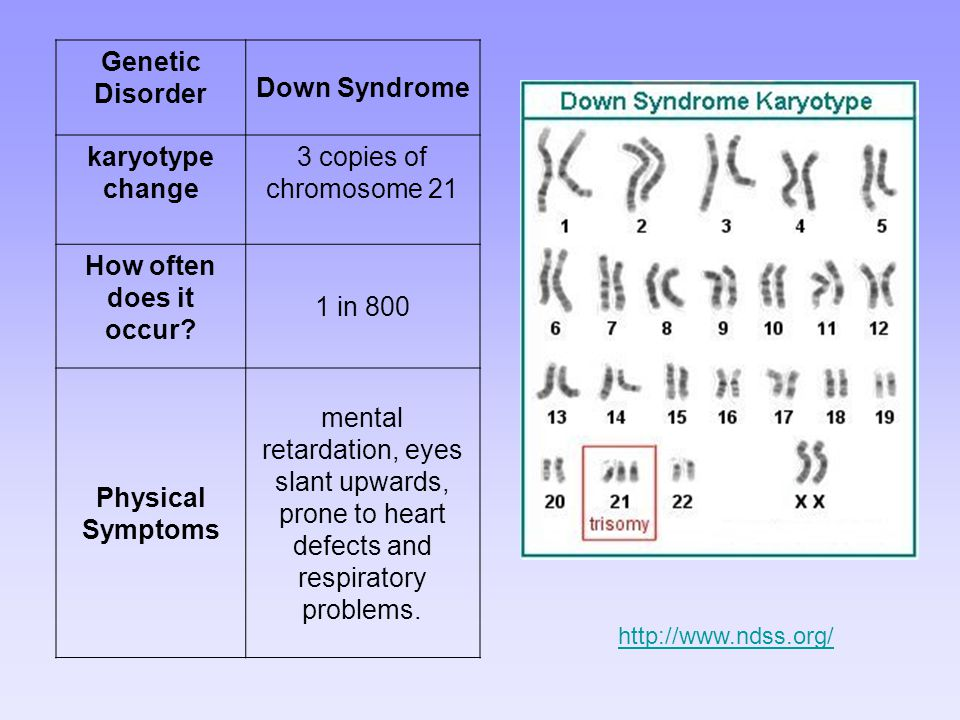 Genetic Disorder Down Syndrome karyotype change
