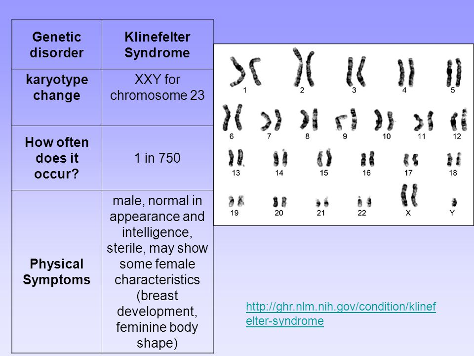 Genetic disorder Klinefelter Syndrome karyotype change