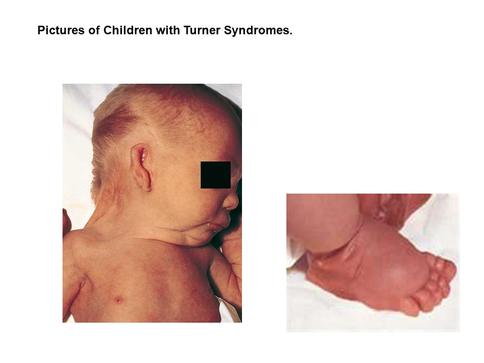 Pictures of Children with Turner Syndromes.