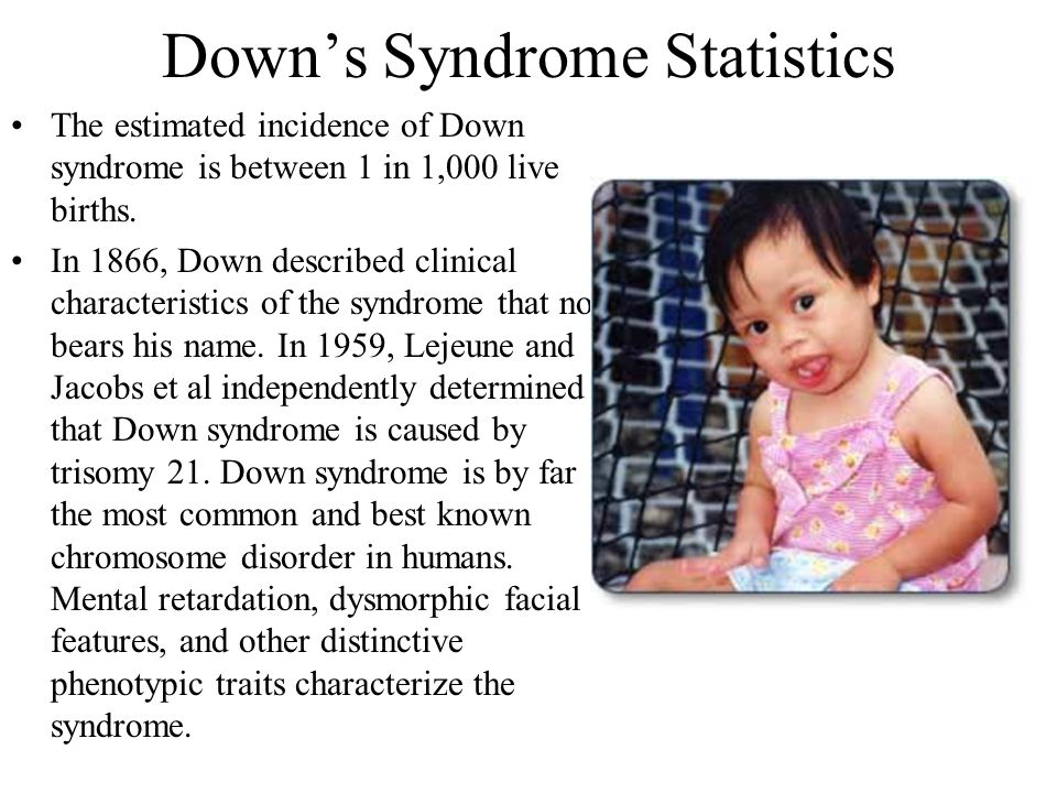 Down's Syndrome Statistics