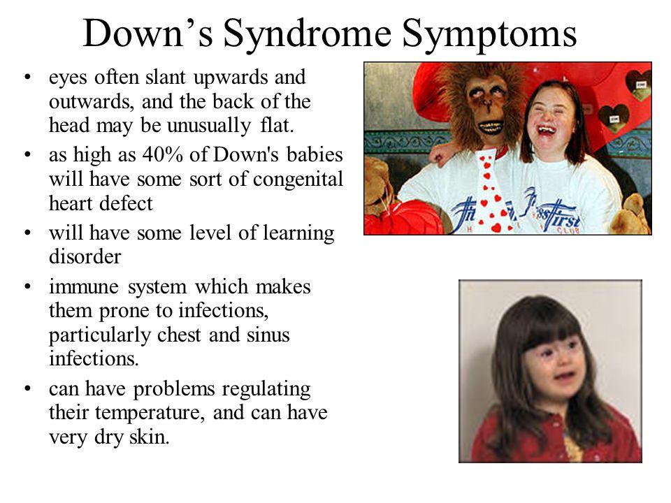Down's Syndrome Symptoms