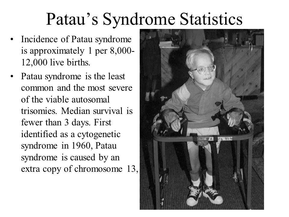 Patau's Syndrome Statistics