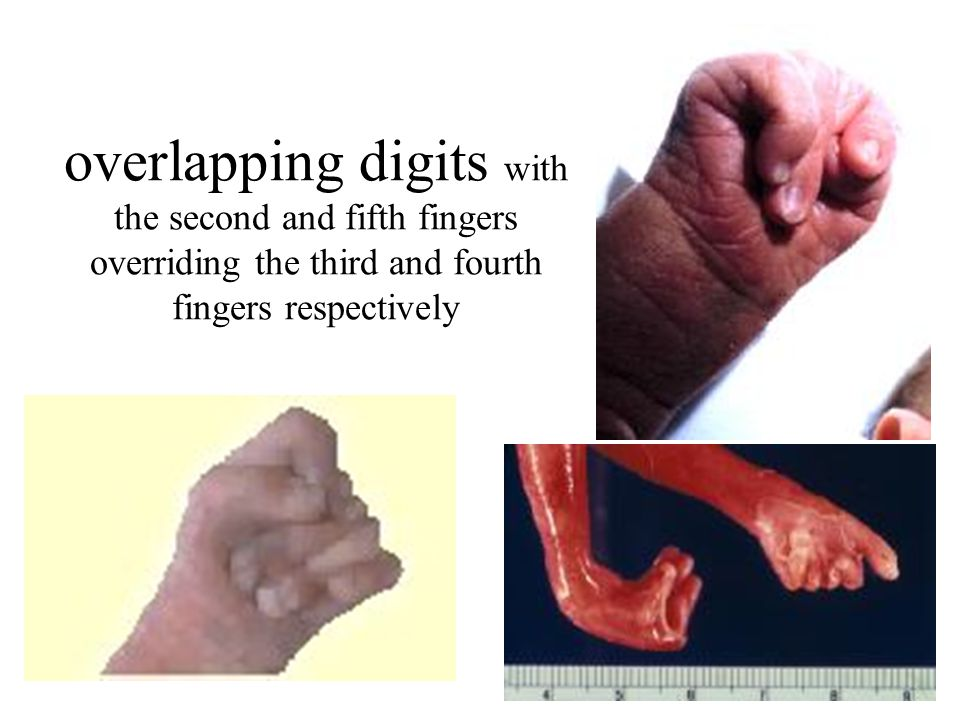 overlapping digits with the second and fifth fingers overriding the third and fourth fingers respectively