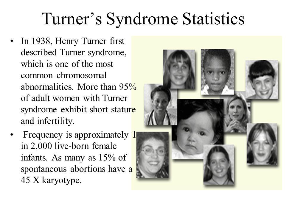 Turner's Syndrome Statistics