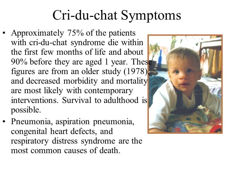 Cri-du-chat Symptoms