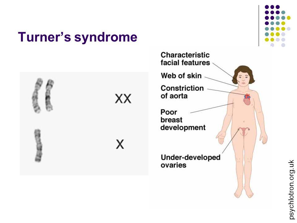Turner's syndrome psychlotron.org.uk