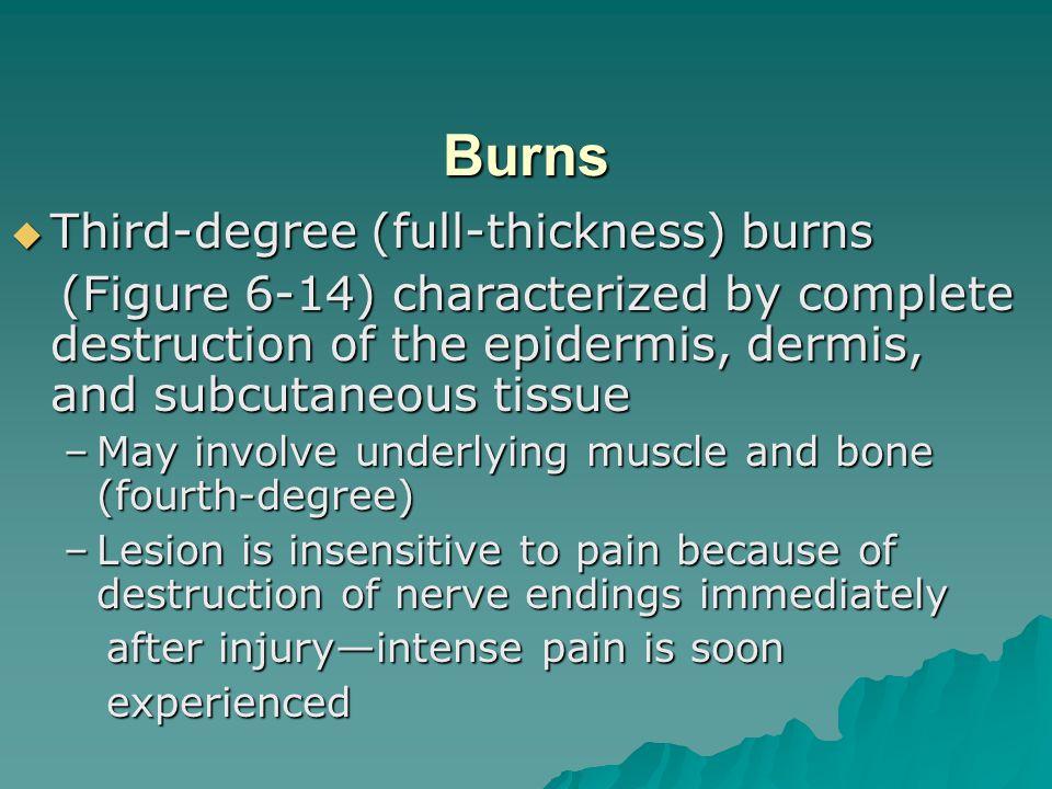 Burns Third-degree (full-thickness) burns