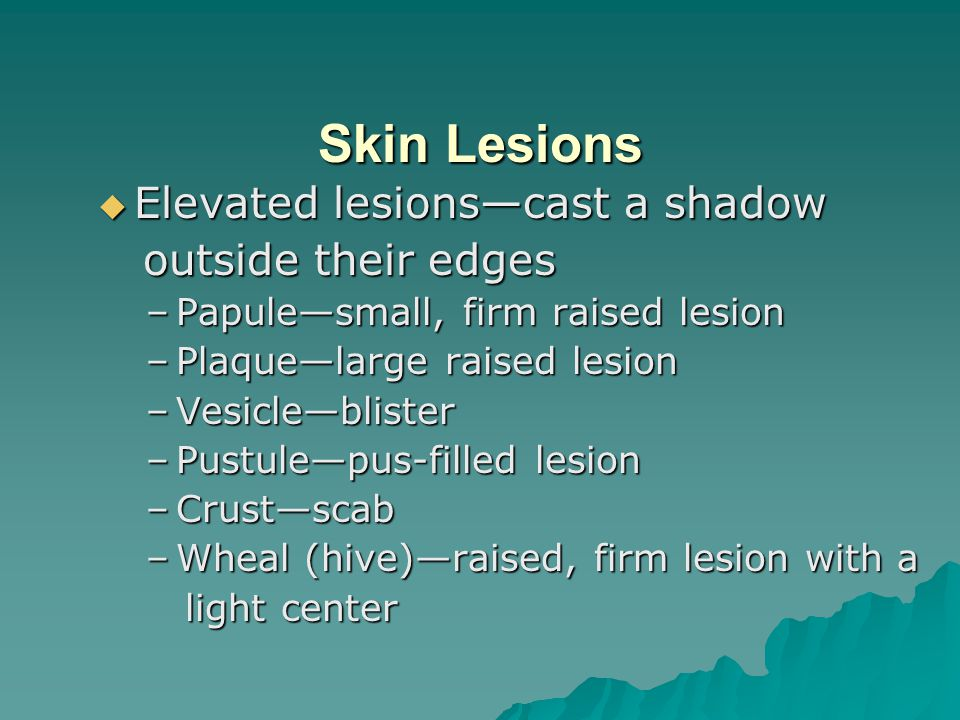 Skin Lesions Elevated lesions—cast a shadow outside their edges