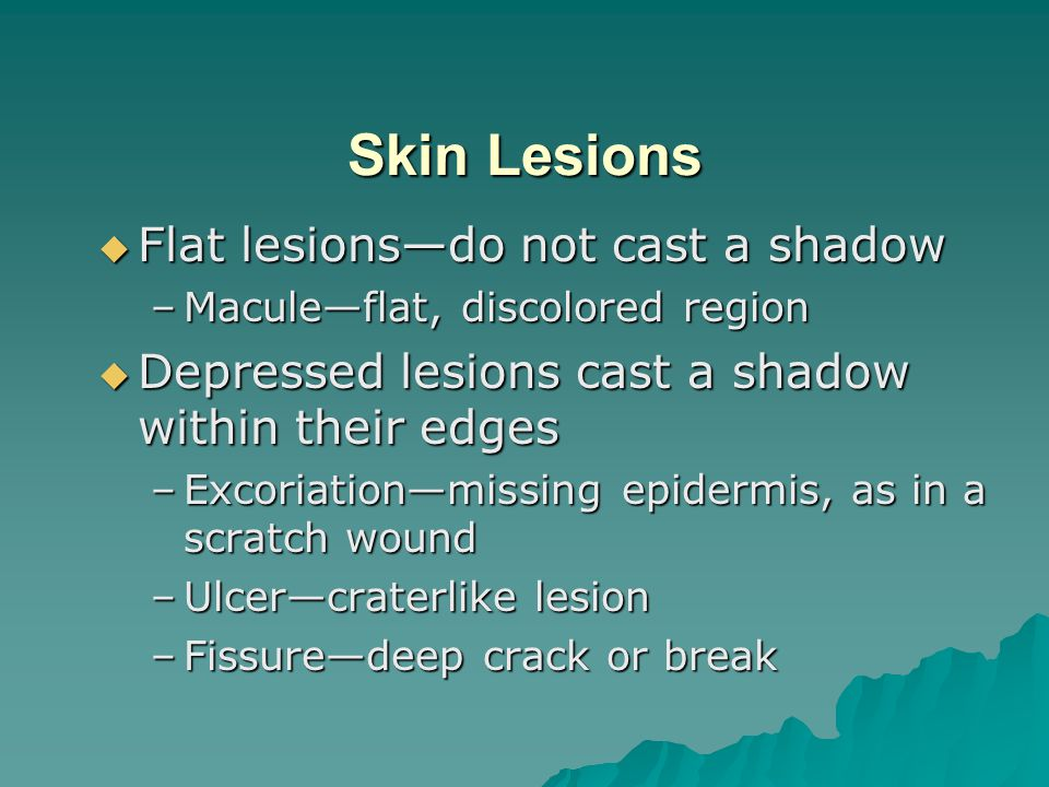 Skin Lesions Flat lesions—do not cast a shadow