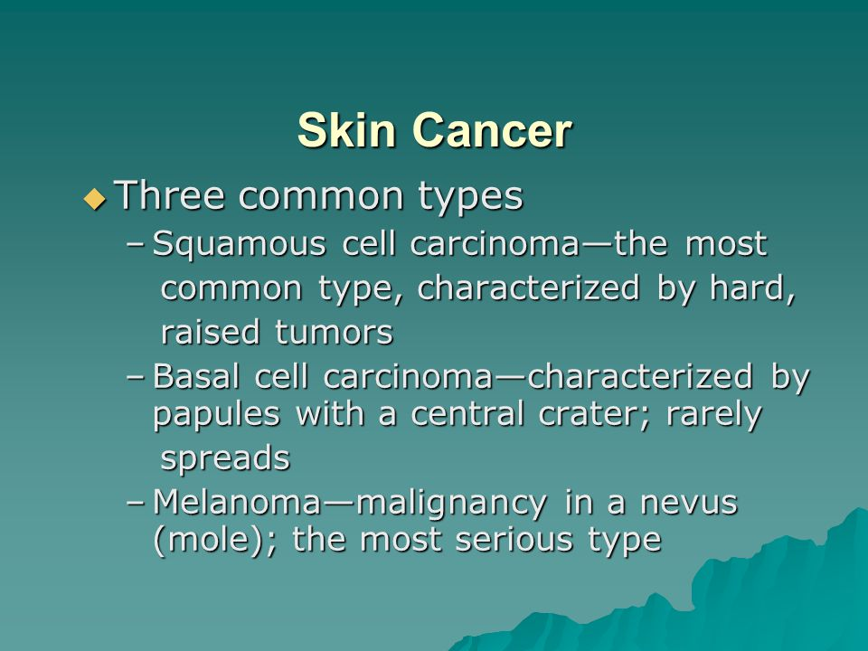 Skin Cancer Three common types Squamous cell carcinoma—the most