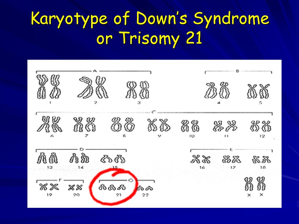 Karyotype of Down's Syndrome or Trisomy 21