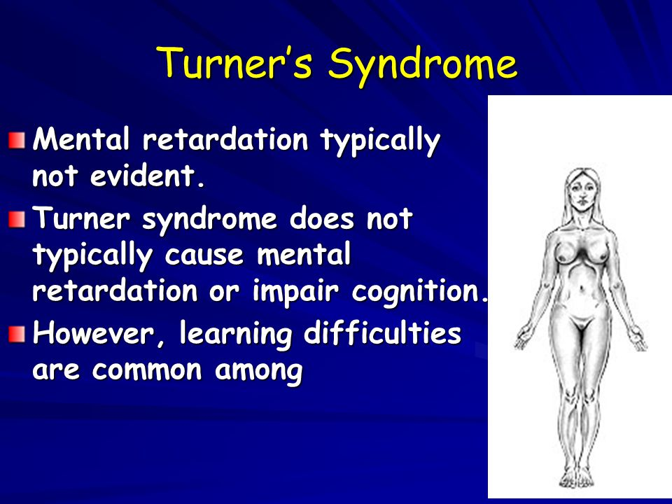 Turner's Syndrome Mental retardation typically not evident.