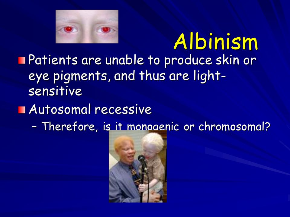 Albinism Patients are unable to produce skin or eye pigments, and thus are light-sensitive. Autosomal recessive.