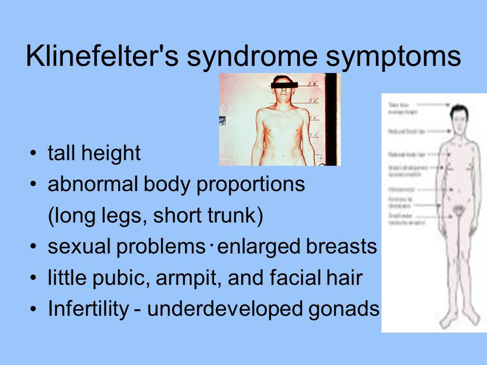 Klinefelter s syndrome symptoms