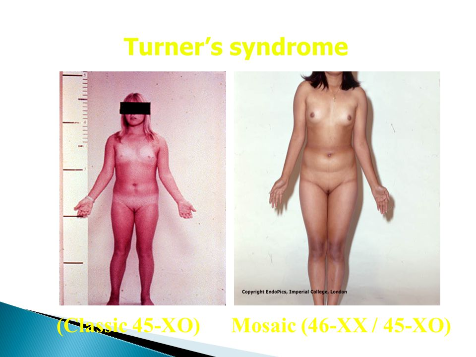 Turner's syndrome (Classic 45-XO) Mosaic (46-XX / 45-XO)