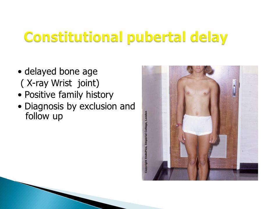 Constitutional pubertal delay