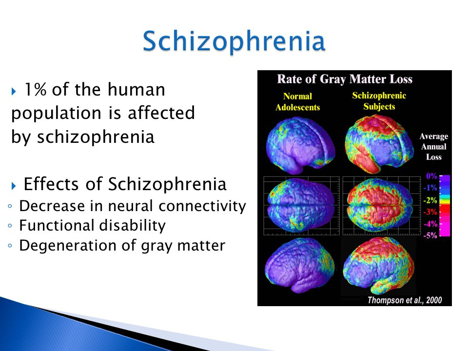 Schizophrenia 1% of the human population is affected by schizophrenia
