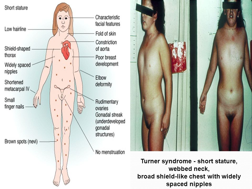 Turner syndrome - short stature, webbed neck,