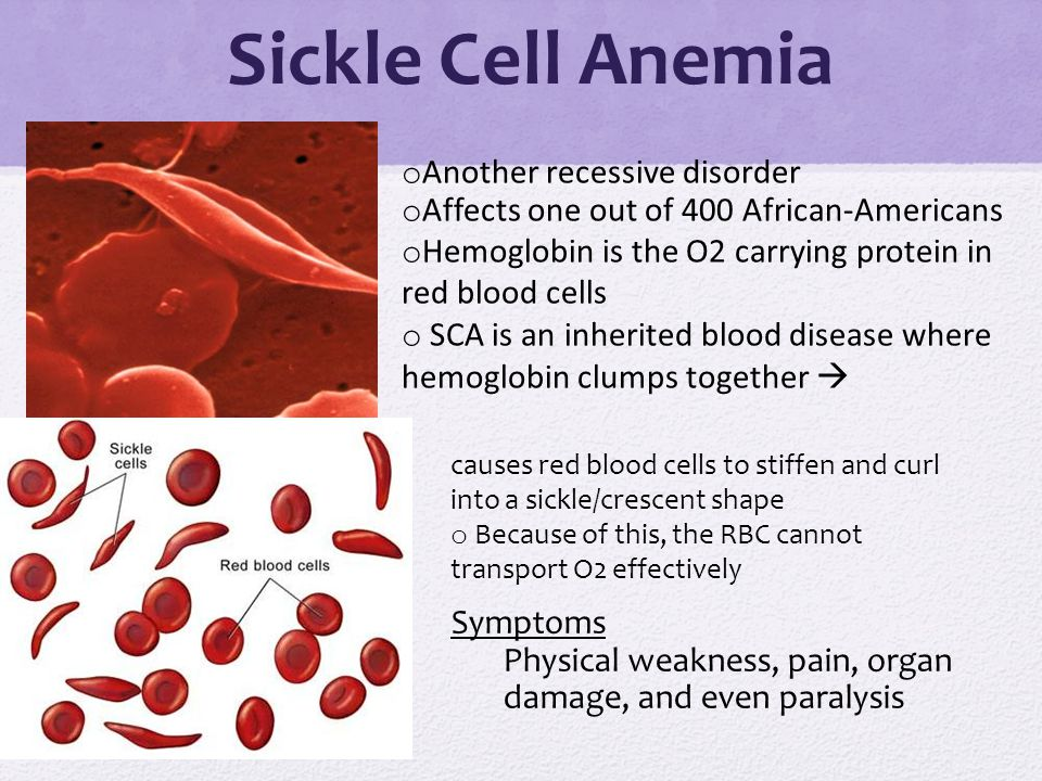 understanding the recessive disorder sickle cell anemia Less common forms of sickle cell disease diagnostic confusion and other considerations sickle cell disease (scd) is the name for a group of related blood disorders caused by an abnormal hemoglobin (hb) called sickle cell anemia (hb ss) is an autosomal recessive disease, so if both.
