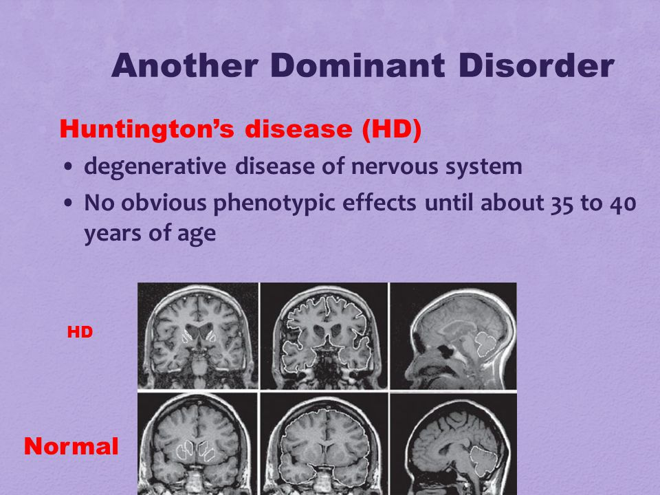 Another Dominant Disorder