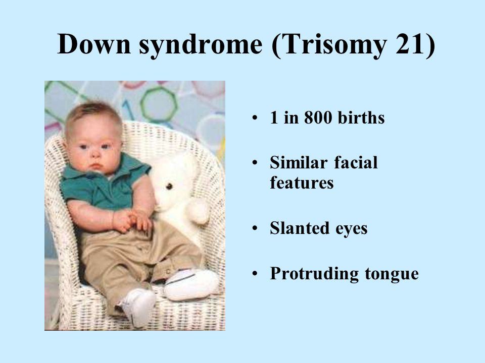 Down syndrome (Trisomy 21)