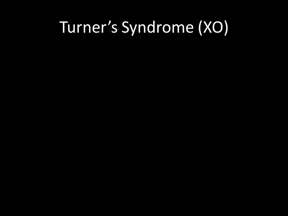 Turner's Syndrome (XO)