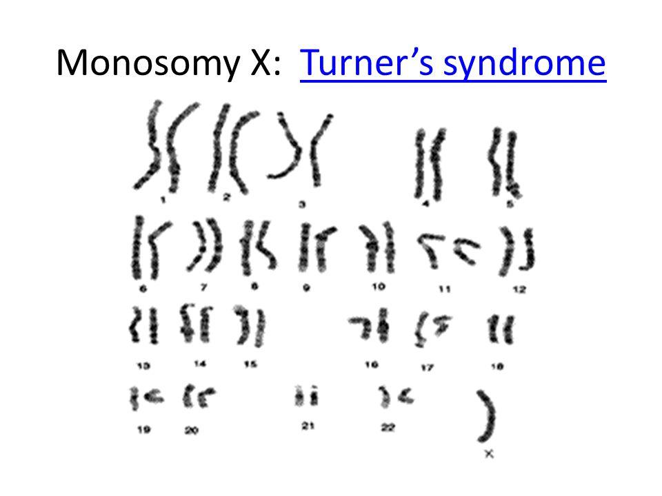 Monosomy X: Turner's syndrome