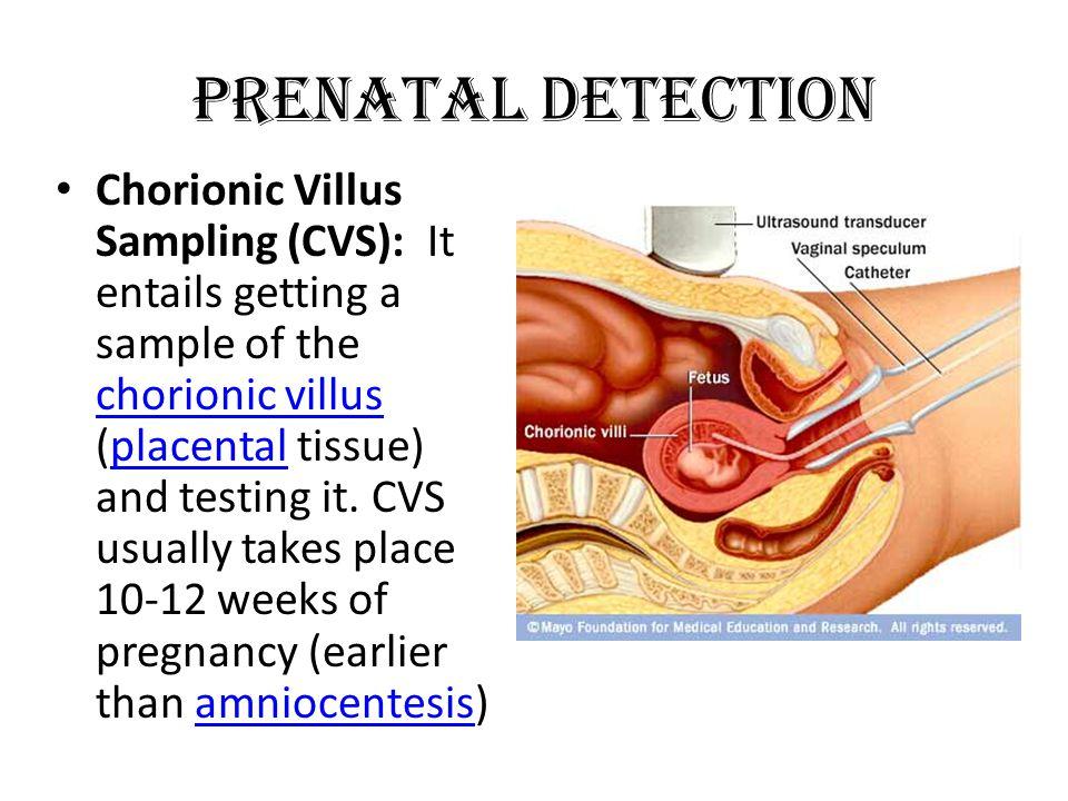 Prenatal detection