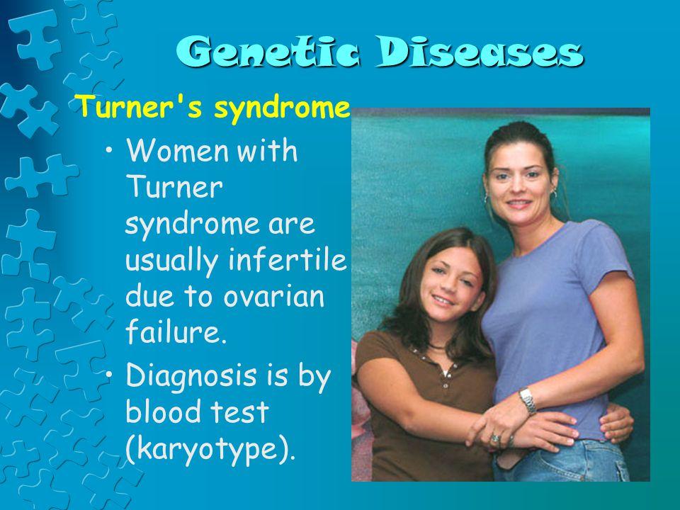 Genetic Diseases Turner s syndrome