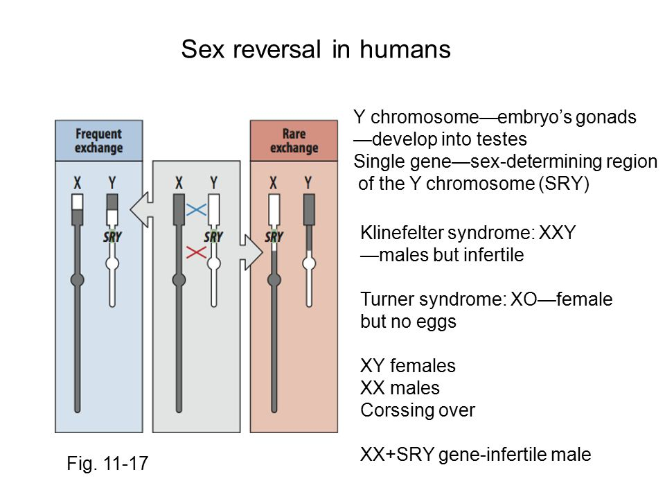 Sex reversal in humans Y chromosome—embryo's gonads