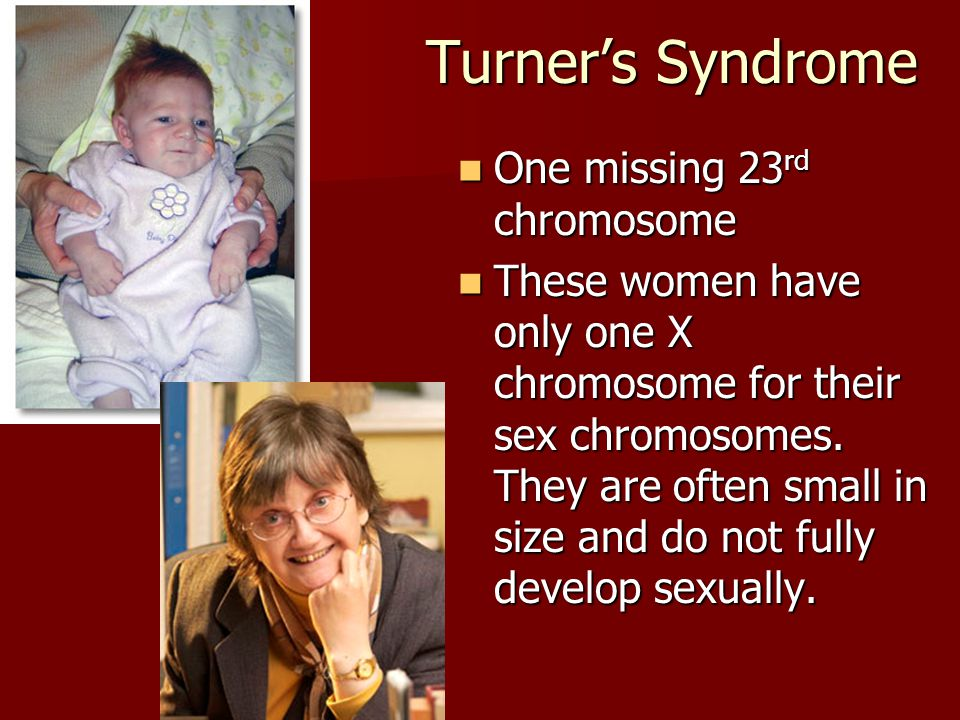 Turner's Syndrome One missing 23rd chromosome