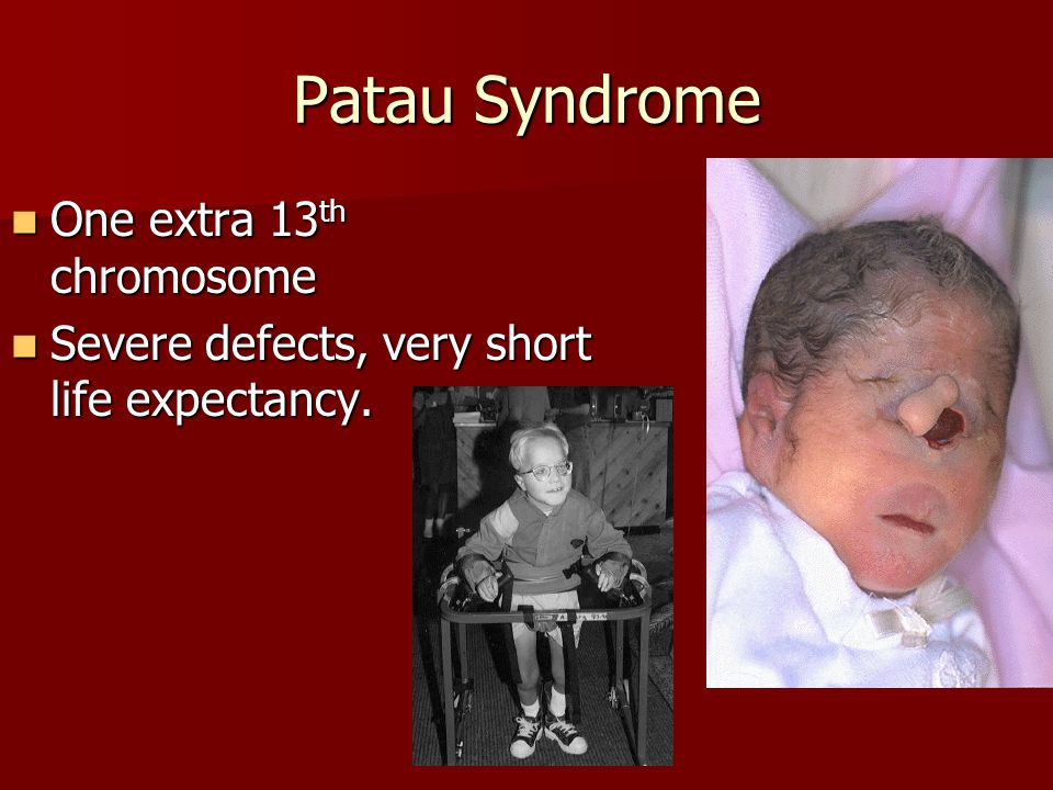 Patau Syndrome One extra 13th chromosome