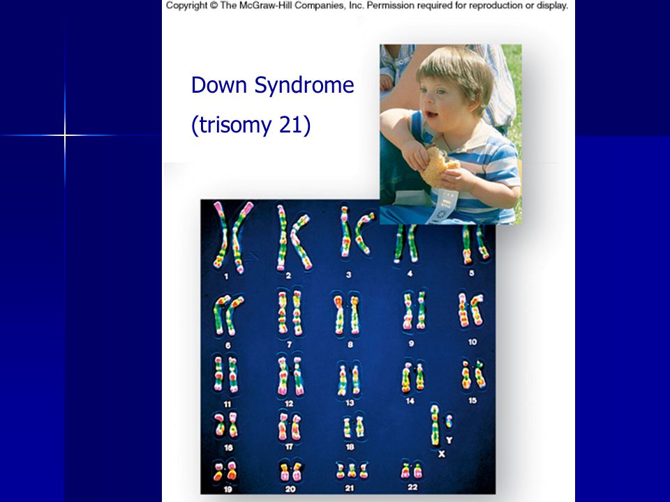 Down Syndrome (trisomy 21)