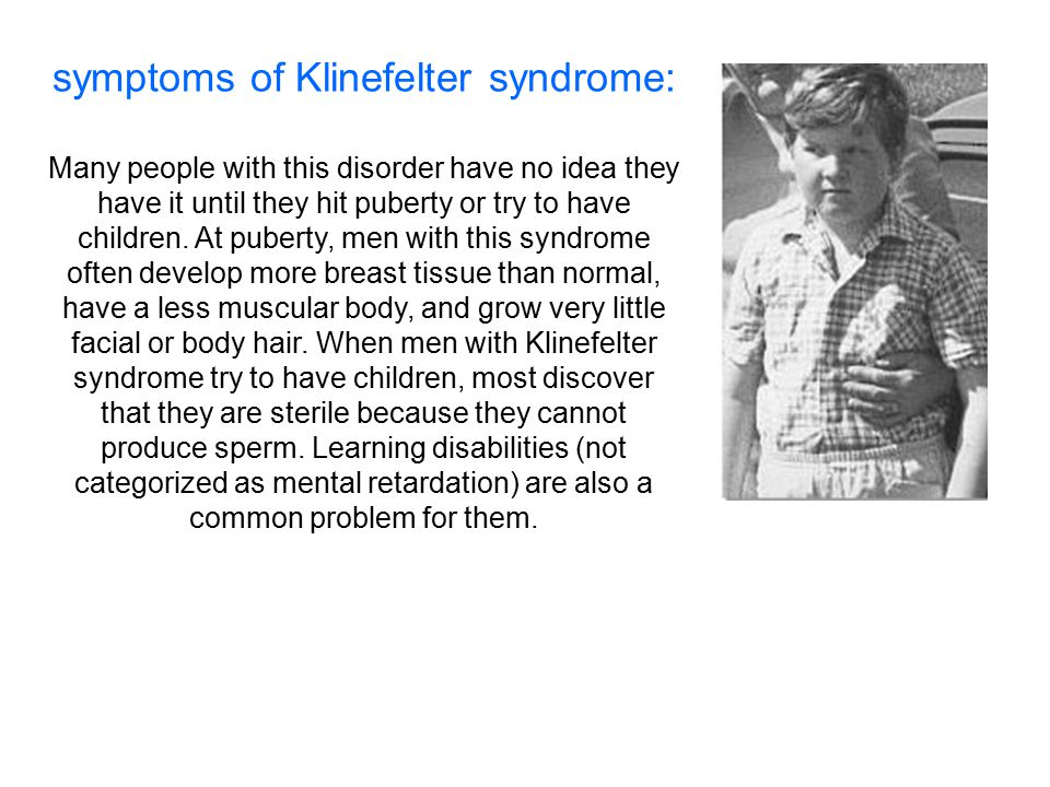 symptoms of Klinefelter syndrome: