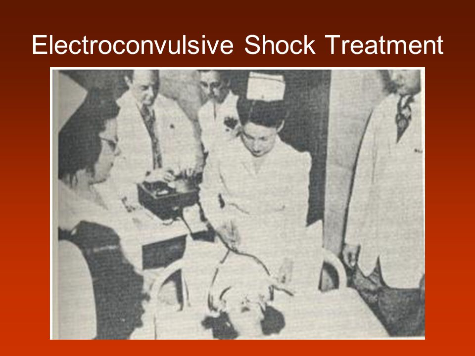 Electroconvulsive Shock Treatment