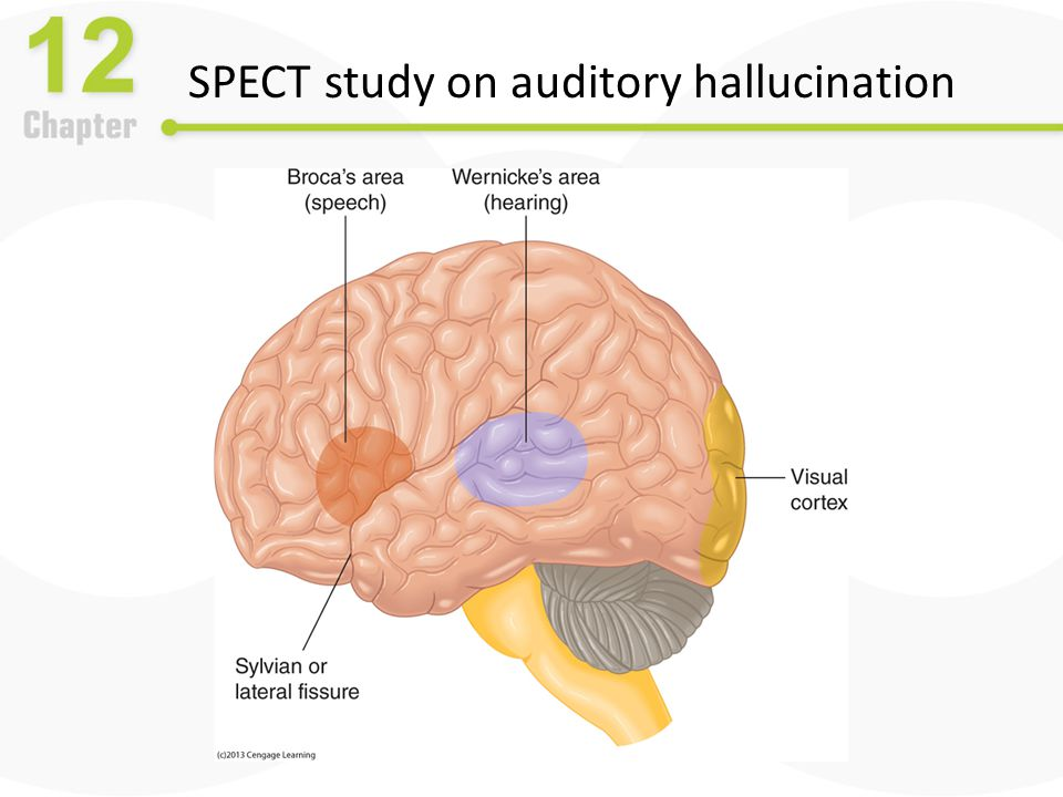 SPECT study on auditory hallucination