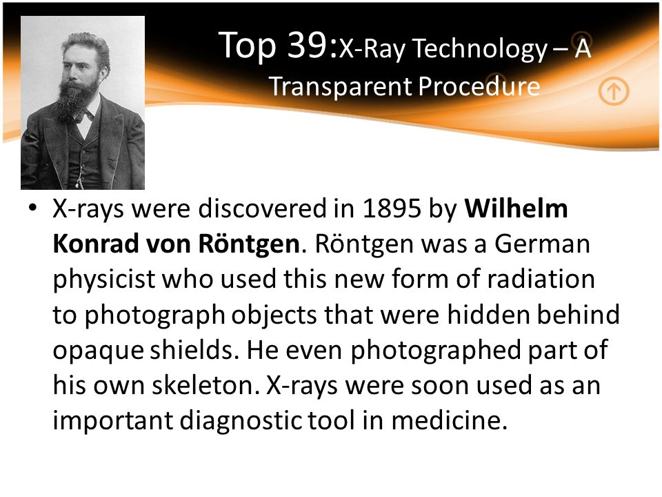 Top 39:X-Ray Technology – A Transparent Procedure
