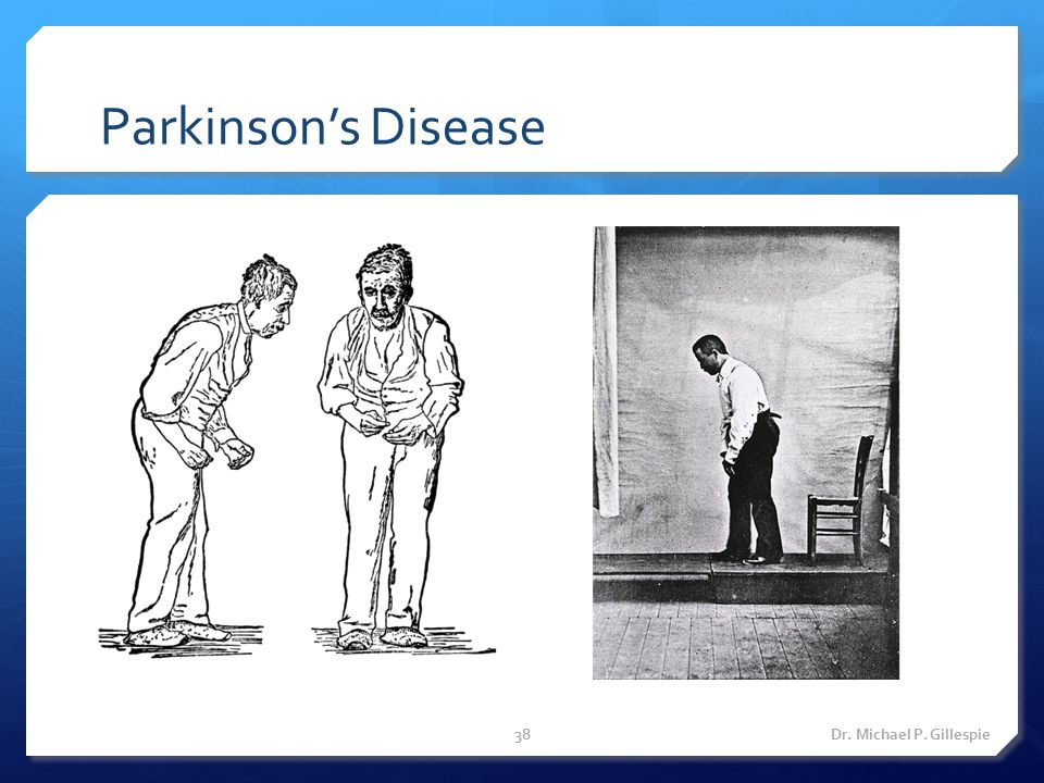 Parkinson's Disease Dr. Michael P. Gillespie