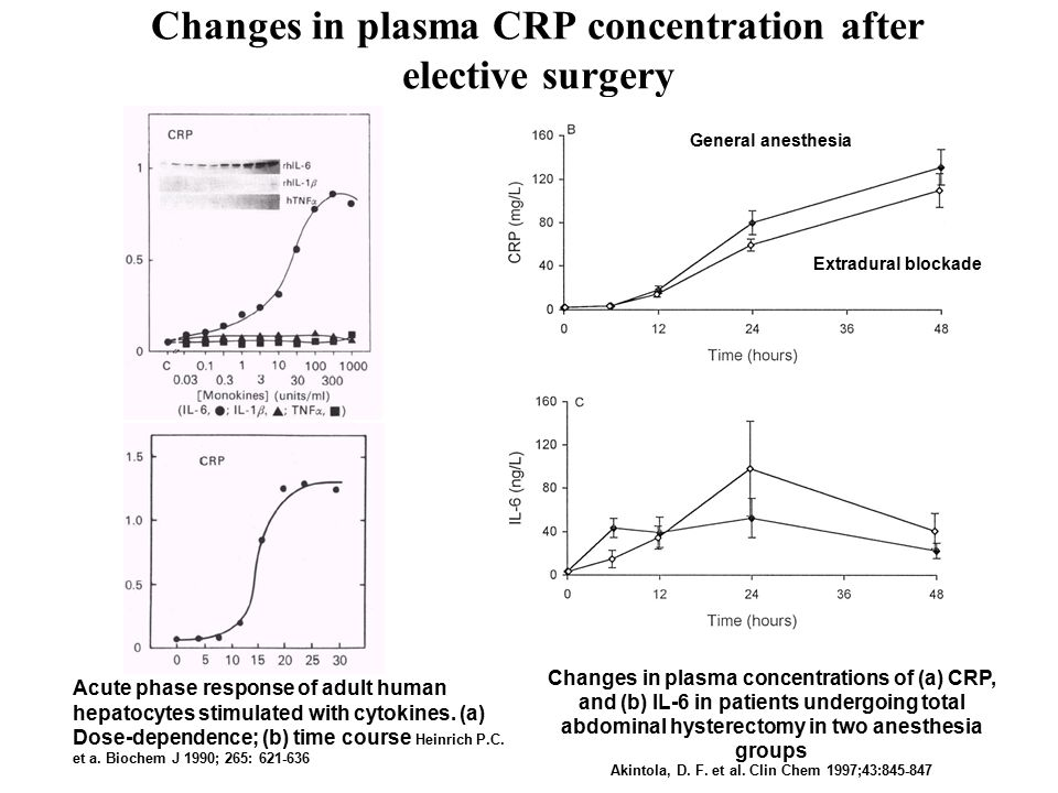 Changes in plasma CRP concentration after elective surgery