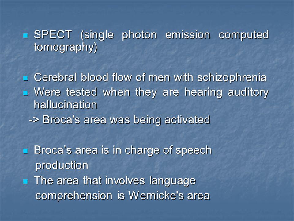 SPECT (single photon emission computed tomography)