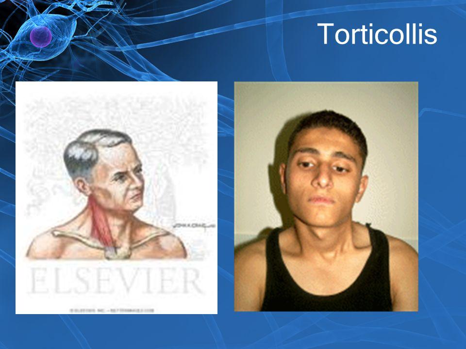 Torticollis