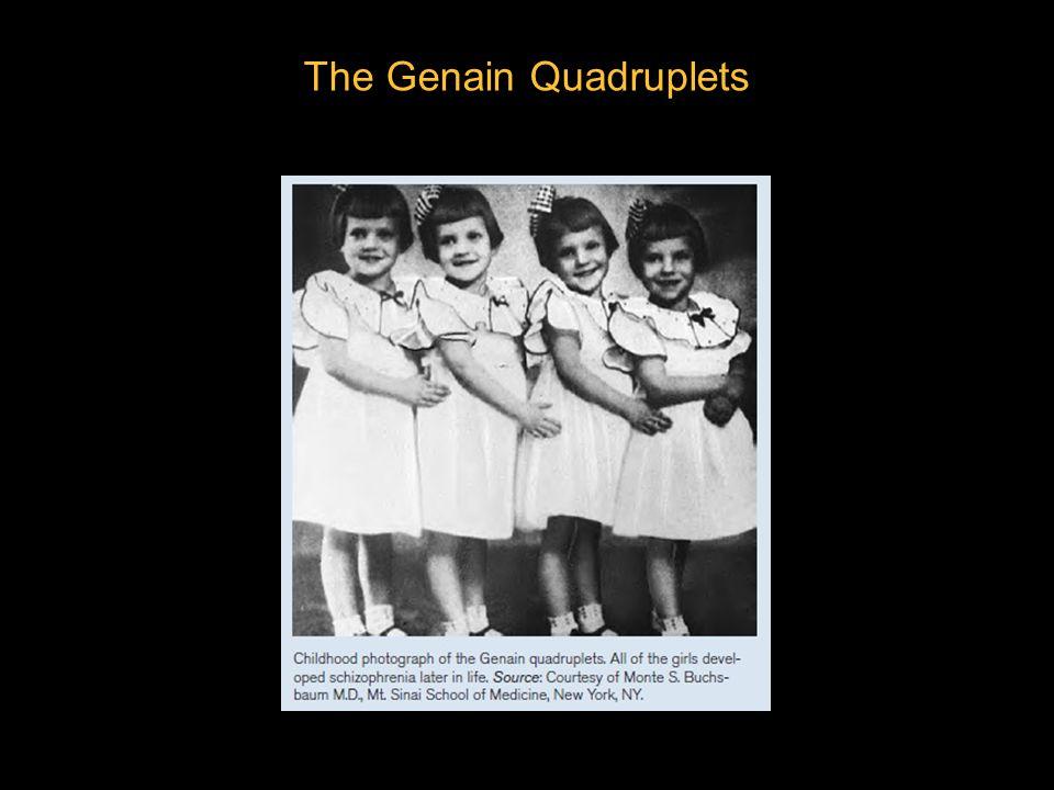 genain quadruplets - photo #6