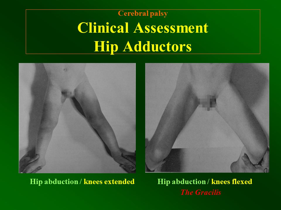 Cerebral palsy Clinical Assessment Hip Adductors