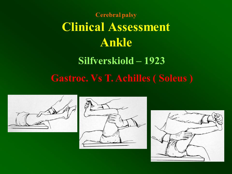 Cerebral palsy Clinical Assessment Ankle