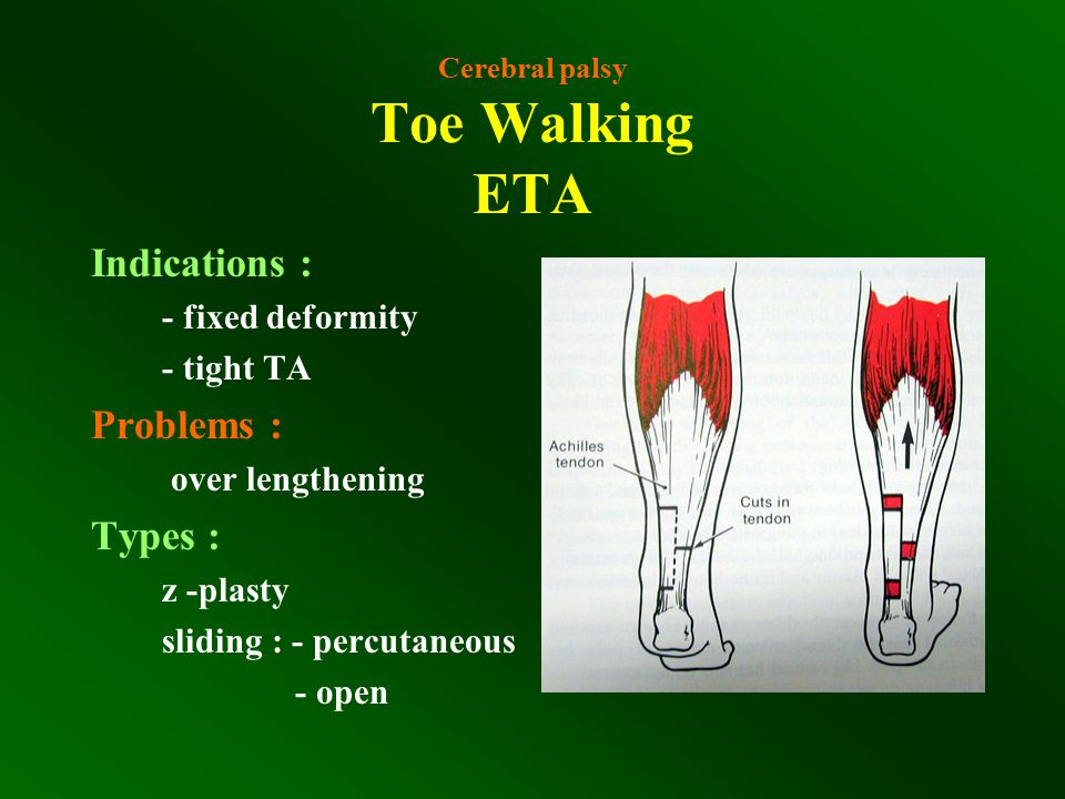 Cerebral palsy Toe Walking ETA