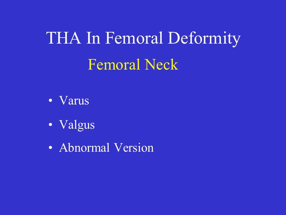 THA In Femoral Deformity